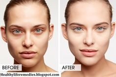 home Remedies, under eye circles treatment, under eye bags, under eye circles causes, under eye circles home remedies, under eye circles cream, under eye circles surgery, severe under eye circles, hemorrhoid cream for under eye circles, under eye circles treatment laser, under eye circles treatment at home, how to get rid of sleeping bags, dark circles under eyes, how to remove dark circles, how to get rid of dark circleshow to remove dark circles in 2 days, how to get rid of dark circles…