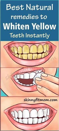 While many wish to have white, pearly teeth; there is a constant battle to keep teeth stains and yel Herbal Remedies, Health Remedies, Natural Remedies, Teeth Whitening Remedies, Natural Teeth Whitening, Dentistry Education, Teeth Whiting At Home, Coconut Oil Pulling, Stained Teeth
