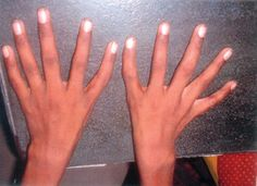 A triphalangeal thumb (TPT) is a congenital malformation where the thumb has three phalanges instead of two.