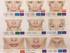 Have you heard about thread lift surgery? Balshi offers new nova thread lift surgery. Contact us today Face Injections, Face Threading, Thread Lift, Fox Eyes, Facial Aesthetics, Lip Augmentation, Dermal Fillers, Plastic Surgery, Skin Care