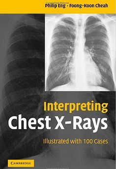 Interpreting Chest X-Rays: Illustrated with 100 Cases (2005). Philip Eng, Foong-Koon Cheah.