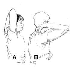 hip flexor strain or strain fracture
