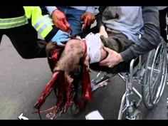 Highly Censored: Interview with Investigator & Double Amputee Concerning Boston  This Video Is Highly Censored: Interview with Investigator & Double Amputee Concerning Boston http://www.youtube.com/watch?v=vX7_Gso215g  Strategic Operations http://www.strategic-operations.com/news/article/2013/05/03/strategic-operations-helps-boston-disaster-preparedness  Amputees In Hollywood http://www.amputeesinhollywood.com/TalentLower.html