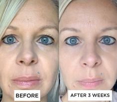 💚 👉 Nach 3 Wochen Anwendung von CellProof sind sichtbare Verbesserungen erkennbar.  ✅ Viele Anwender/innen haben in kürzerer Zeit entsprechende Ergebnisse.   Jetzt noch bis Ende Juni bis zu 30% Rabatt holen. Weitere Infos gibt es in meinem Onlineshop. 🙏  #antifaltencreme #antiaging #skincare #beauty #40plusskincare #hautpflege #gesund #rabatt Anti Aging, Juni, Inside Out, Beauty, Lifestyle, Earn Money, Skincare Routine, Health, Tips