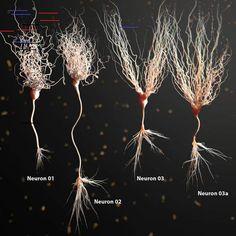 model of neuron anatomy - Bildung Brain Anatomy, Medical Anatomy, Human Anatomy And Physiology, Body Anatomy, Anatomy Art, Types Of Neurons, Nervous System Anatomy, Brain Neurons, Brain Art