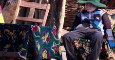 osCurve   Contactos : Vivir con el miedo de ser albino en África
