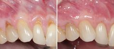Learn about impacted tooth extraction and the removal process from board-certified Beverly Hills periodontists and tooth extraction experts. Impacted Tooth, Teeth, Tooth