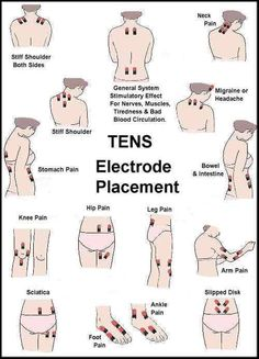 If you have a TENS unit, here are some approved placement options to help with all kinds of pain!