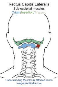 oit-rectus-capitis-lateralis