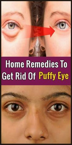 Need natural remedies for dark circles and puffy eyes? Learn how to remove dark circles under eyes and how to get rid of bags under eyes naturally. Dark Circle Remedies, Under Eye Puffiness, Dark Circles Under Eyes, Eye Circles, Under Eye Bags, Tired Eyes, Face Treatment, Puffy Eyes, Women Health