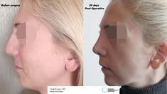 Rhinoplasty surgery Ozge ERGUN, MD ® https://ozgeergun.com.tr/en/ 📲WhatsApp: +90 543 470 4709 #PlasticSurgery #PlasticSurgeryturkey #NoseJob #nosejobistanbul #nosejobturkey #Rhinoplasty #rhinoplastyturkey #rhinoplastyistanbul #rinoplastia #rinoplastiaestetica #Nasenkorrektur  #Aesthetics #beauty #estética #cirugíaplástica #estetica #plastischeChirurgie #chirurgieplastique  #鼻形成術 #整形手术 #جراحةالتجميل #næsekorrektion #ринопластика #realself #Rhinoplastie #Rinoplastica #Näsplastik