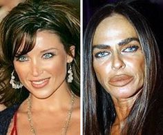 15 Celebs That Destroyed Their Face with Plastic Surgery