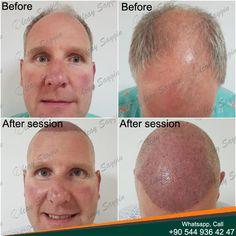 Hair Transplant in Turkey Zen hair olcay saygin Eyebrow Transplant, Hair Transplant Results, Hair Transplant Surgery, Best Hair Transplant, Good Doctor, Doctor In, Hair Clinic, Lip Fillers, Hair Restoration