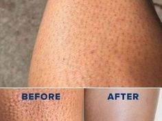 Dark pores on the legs are one of the weird things for women. While they tried so many times, they fed up to deal it [. Leg Hair, Mascara Tips, Clean Face, Aloe Vera Gel, How To Get Rid, Skin Treatments, Beauty Routines, Oily Skin, Beauty Skin