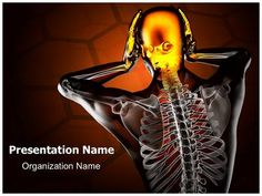 Trauma Radiography Scan PowerPoint Presentation Template is one of the best Medical PowerPoint templates by EditableTemplates.com. #EditableTemplates #Roentgen #Skeleton #Education #Adult #Body #Vertebra #Anatomy #X-Ray #Biology #Part #Ribs #Backache #Examination #Chest #Human #Injury #Skeletal #Disease #Headache #Science #Spine #Trauma #Xray #Head #Radiation #Radiography #Hospital #Arthritis  #Medicine