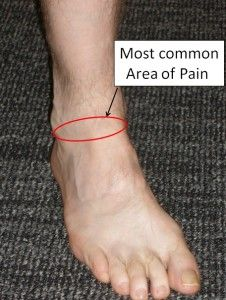Location of Pain in Anterior Ankle Impingement