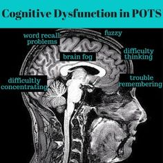"Cognitive Dysfunction and ""Brain Fog"" in POTS"