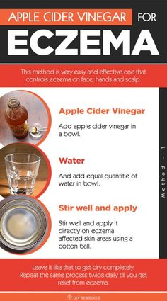 Forces Your Body to Heal Psoriasis - How to use Apple Cider Vinegar for Eczema: ACV is an effective remedy for eczema but it is equally important to know how to use ACV properly. So, here we are providing you with the best ways of ACV to heal eczema. Psoriasis Diet, Psoriasis Remedies, Home Remedies For Eczema, Natural Remedy For Eczema, Natural Skin, Psoriasis Elbow, Natural Remedies, Plaque Psoriasis, Acne Remedies