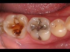 Tooth cavity | Home remedies for tooth decay and cavities 2015 - YouTube