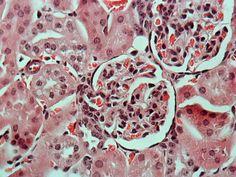 Un lindo glomerulo renal