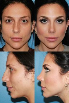 Rhinoplasty Before and After photos #SanDiego #Nosejob