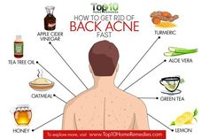 how to get rid of back acne