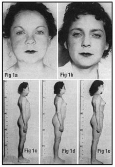 Hypothyroid Face - 180 Degree Health