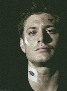 """Dean 1x02 """"Wendigo"""" #Supernatural"""