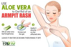How to Get Rid of an Armpit Rash: Reduce Irritation & Itching | Top 10 Home Remedies