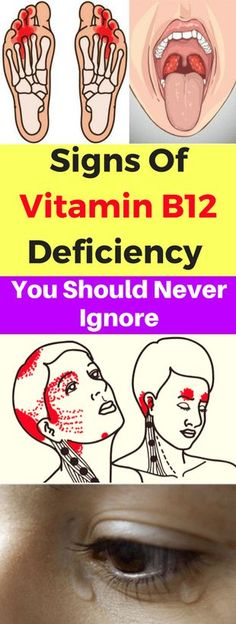 Signs Of Vitamin B12 Deficiency You Should Never Ignore!
