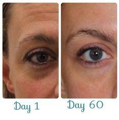 Los resultados usando Nerium-Optimera por 60 días http://beautyskin1.nerium.com