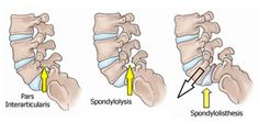 spondylosis | Spondylosis is a term given to vertebra that is undergoing a ...