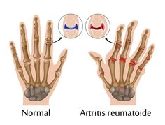 Esta es una de las enfermedades más comunes que padecen muchas personas y que además es bastante incapacitante debido al intenso dolor que produce en las articulaciones.
