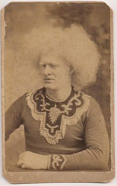 Circus Collection CDV32 Albino CIRCASSIAN Man Unzie by Newman Philly Photog | eBay