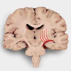 Basal ganglial haemorrhage