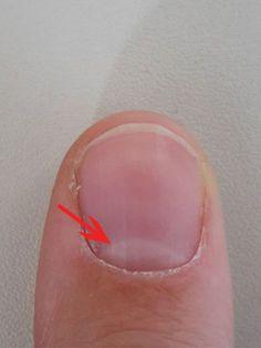 Die Lunula ist der sichtbare Teil der Nagelmatrix. Ihre Form und Farbe kann Rückschlüsse auf deine Gesundheit ermöglichen.Hinter dem