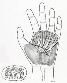 Carpal Tunnel Syndrome (CTS) is a chronic painful condition of the wrist area. Find out more the signs and symptoms, diagnosis and the treatment options. Median Nerve, Hand Injuries, Carpal Tunnel Syndrome, Signs And Symptoms, Chopsticks