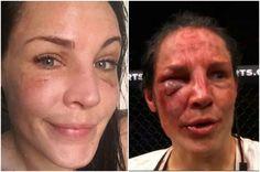 InfoNavWeb                       Informação, Notícias,Videos, Diversão, Games e Tecnologia.  : Musa do UFC mostra recuperação após ter rosto cast...