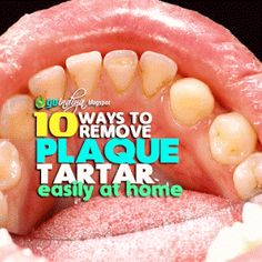 Ways to Remove Plaque and Tartar from Teeth At Home Naturally ~ Natural Home Remedies. Simple and EffectiveEasy Ways to Remove Plaque and Tartar from Teeth At Home Naturally ~ Natural Home Remedies. Simple and Effective Plaque Removal At Home, Teeth Whiting At Home, Diabetes, Homemade Mouthwash, Tartar Removal, Natural Teeth Whitening, Teeth Care, Skin Care, Natural Home Remedies