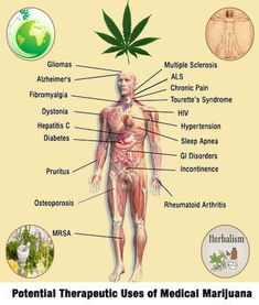 Cannabis has been found to effectively treat pain stemming from cancer, diabetes, HIV/AIDS, spinal cord injury and many other debilitating conditions in many patients.
