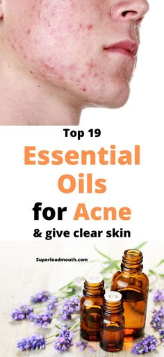 Top 19 Essential Oils for Acne and to get Clear skin Easential Oils, Acne Oil, Face Mapping, Best Essential Oils, Cystic Acne Essential Oil, Hormonal Acne, Acne Remedies, Natural Remedies, How To Get Rid Of Acne
