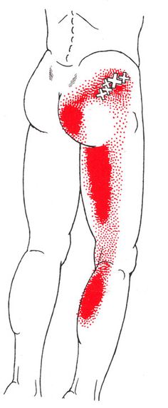 trigger points - Google Search