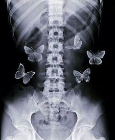 X-Ray Anticipatory Conceptual Butterflies Poster Black Aesthetic Wallpaper, Aesthetic Backgrounds, Aesthetic Iphone Wallpaper, Aesthetic Wallpapers, Collage Mural, Bedroom Wall Collage, Photo Wall Collage, Wall Mural, Poster Collage