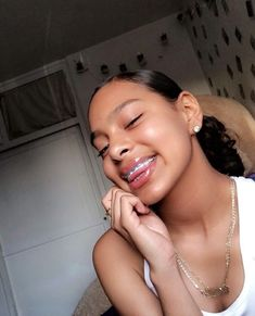 Business and promotions Cute Girls With Braces, Cute Braces Colors, Braces Girls, Baddie Hairstyles, Black Girls Hairstyles, Braided Hairstyles, Glowy Skin, Flawless Skin, Beauty Skin
