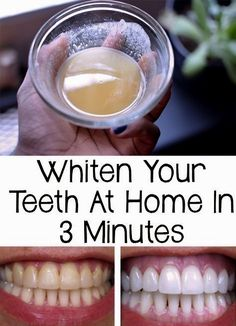 Natural Teeth Whitening Remedies whiten your teeth at home in 3 minutes - Your teeth are far away to look like white pearls? Find out how to whiten your teeth at home in only 3 minutes very cheap and easy! Teeth Whitening Remedies, Charcoal Teeth Whitening, Natural Teeth Whitening, Whitening Kit, Skin Whitening, Natural Toothpaste, Homemade Teeth Whitening, Homemade Toothpaste, Charcoal Toothpaste