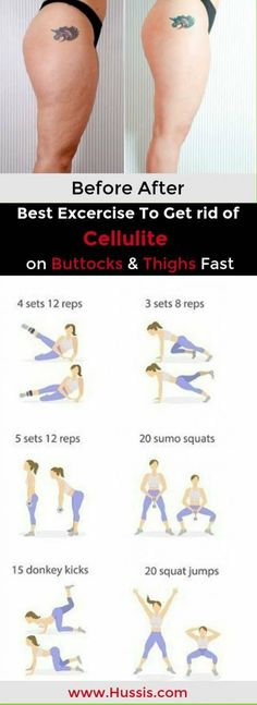 Once summer is here people want to look good on the beach and they are all trying to remove cellulite. Many people, both men and women, are affected by cellulite and they are all looking for different ways on how to remove it. Cellulite is more common in women.try these 7 most effective exercise to get rid of cellulite on buttocks and thighs fast #weighloss #beforeandafter #exercices #thighs #AllYouNeedToKnowAboutCellulite