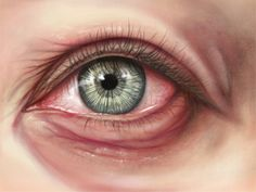 medical illustration eye - Google Search