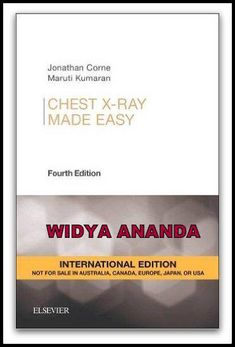 Chest X-Ray Made Easy 4th edition  by Jonathan Corne (Author), Maruti Kumaran (Author)  Product Details 	Series: Made Easy 	Paperback: 184 pages 	Publisher: Elsevier Health Sciences; (August 21, 2015) 	Language: English 	ISBN-10: 070205500X 	ISBN-13: 978- 	Shipping Weight: 1.1 pounds  This popular guide to the examination and interpretation of chest radiographs is an invaluable aid for medical students, junior doctors, nurses, physiotherapists and radiographers. Translated into over a dozen…