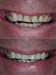 Cerec Crowns done in one day Before and After