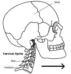 Cervical Spondylosis. What is cervical spondylosis and symptoms | Health | Patient